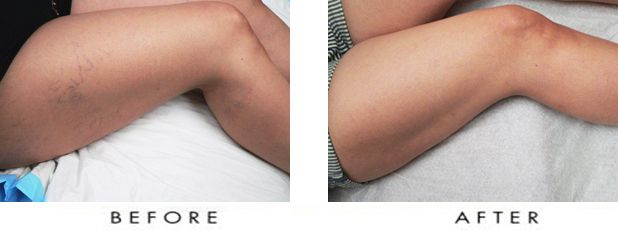 Before and After of Varicose Vein treatment at Carolina Vascula