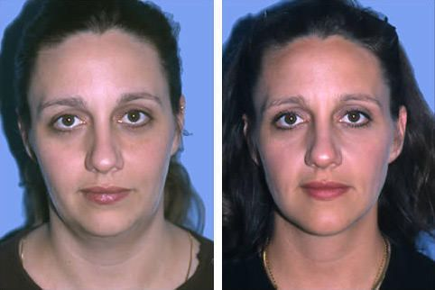 Corrective Jaw Surgery, Facial and Neck Liposuction