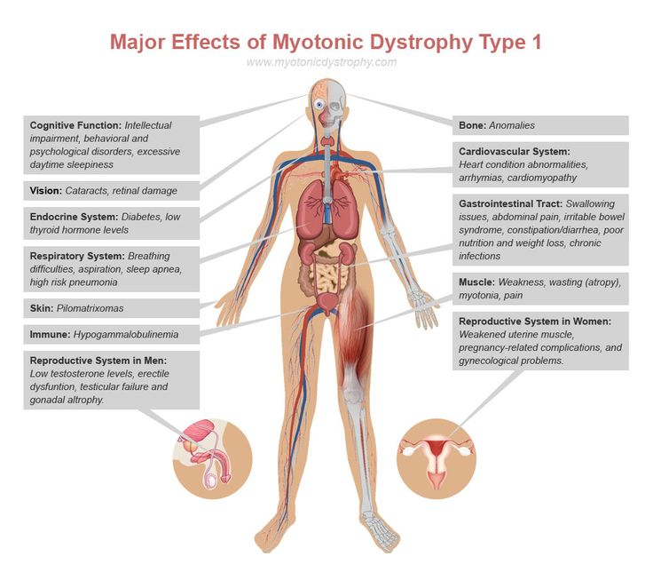myotonic muscular dystrophy infant - Google Search
