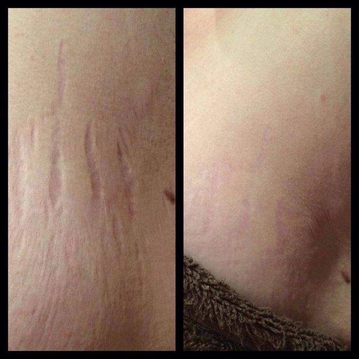 LUMINESCE serum & body cream works on stretch marks - apply daily twice a day, be consistent!