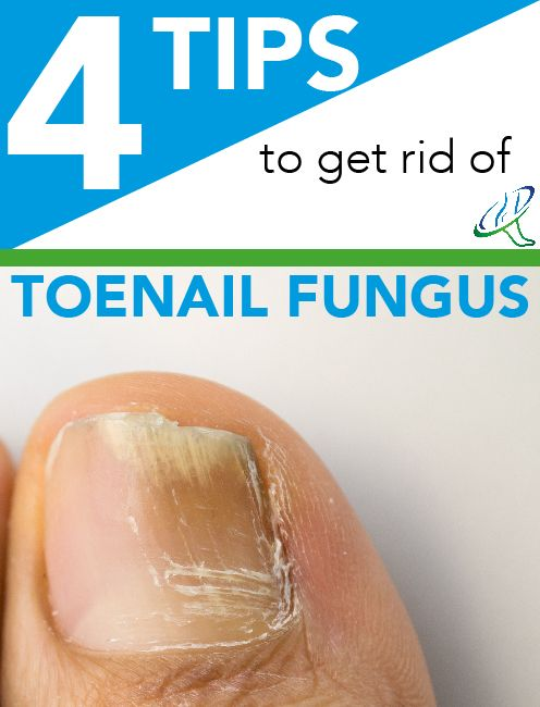 Concerned about unsightly, thick, discolored toenails? Dallas Podiatry Works offers 4 helpful tips to get rid of your fungus.