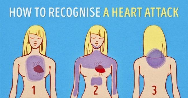 Alcuni consigli assolutamente cruciale: Come riconoscere un attacco di cuore un mese prima