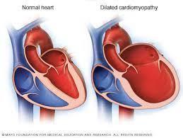 dilated cardiomyopathy