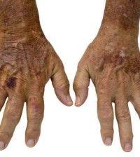 12 Herbal Remedies for Rheumatoid Arthritis