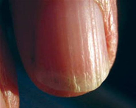 """Most ridges on the nails are harmless with normal variations. However, some nail ridging may be a sign of a serious underlying medical problem. Also known as """"Reedy Nails"""", nail ridges are raised lines on the surface of nails which are also called nail plates. These lines on the nails may run vertic…"""