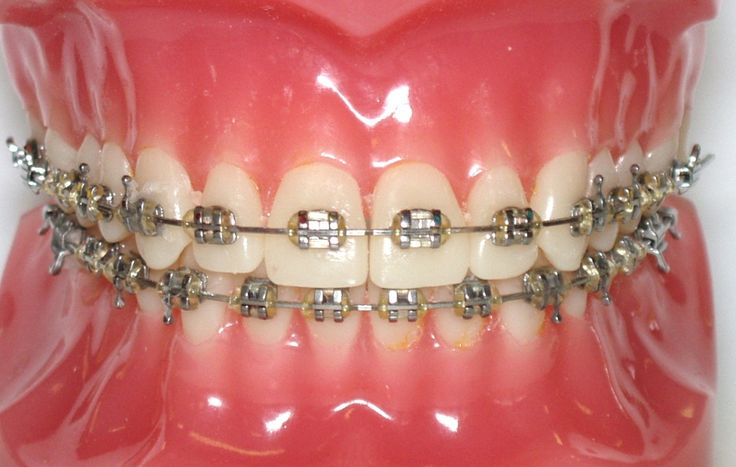 How do braces work normally
