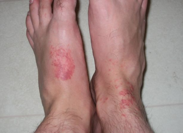 Jellyfish Sting Pictures: Jellyfish Sting on Feet