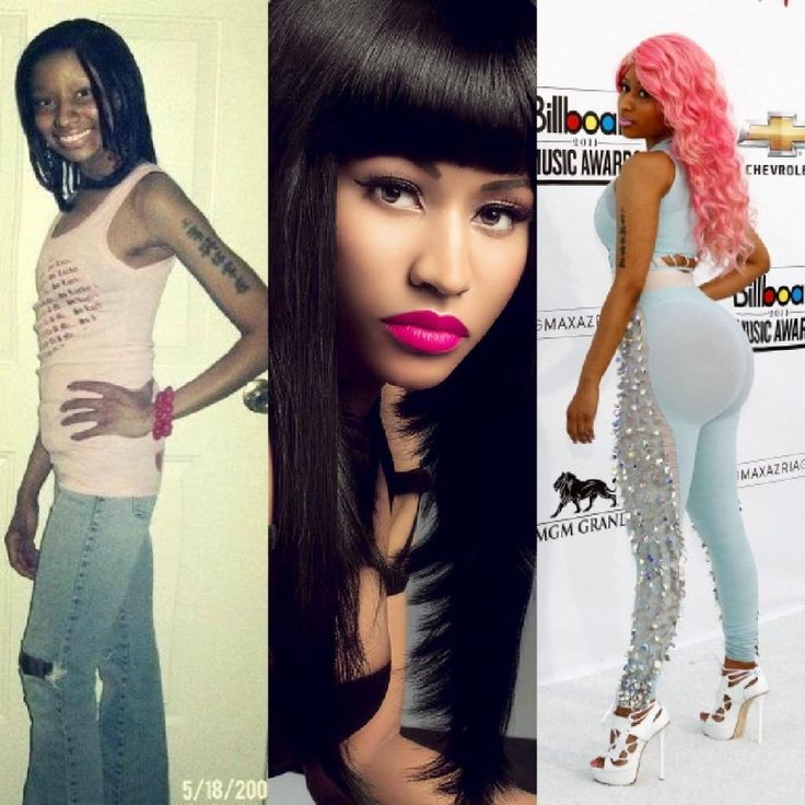 Nicki Minaj Plastic Surgery Photos Before And After 3