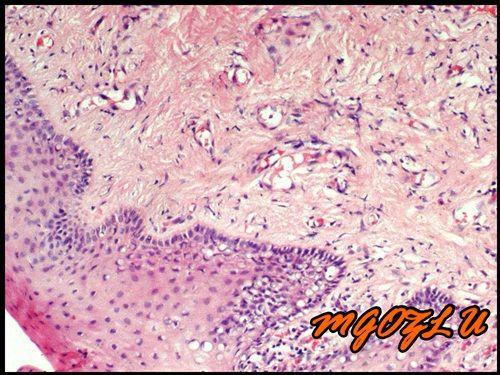 Inflammatory Fibrous Hyperplasia | www.pixshark.com ...
