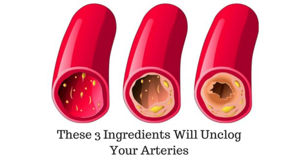 The role of arteries in the human body is to transport nutrients and oxygen to the heart and to other major body organs. Logically, they need to remain clean in order to preserve your health. Because of this, nutrition is crucial for your arteries and your entire health. Heavily processed products, fatty foods, toxins and […]