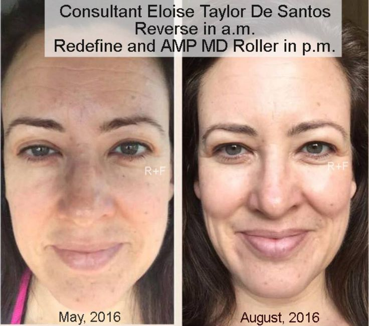 """Eloise Taylor De Santos began using Rodan+Fields products when she became a consultant back in May, 2016. Even though she said she was never one who really took care of her face, she knew that she had nothing to lose with the 60-day money back guarantee. She used the Reverse regimen twice a day for a month, then added Redefine and the AMP MD Roller at night. She has continued with this routine to date. She is wearing no makeup in her before/after photos and said, """"I wanted my"""