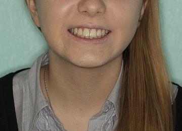 """Лечение и удаление зубов. Примеры работ специалистов стоматологической клиники Ортодонт. """"Стало № 2"""""""