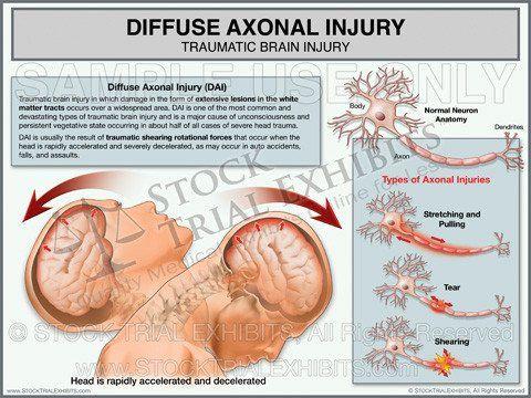 Diffuse Axonal Injury | Brain injury, Traumatic brain ...