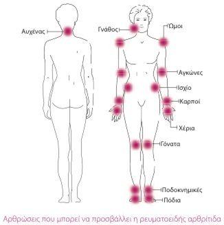Σωστή διατροφή για αρθρίτιδα           -            Η ΔΙΑΔΡΟΜΗ ®