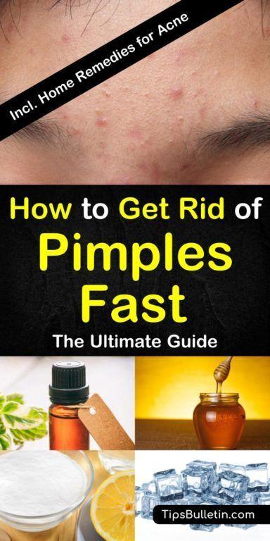 Wie man Pickel schnell loswird – [ 8 Great Home Remedies ]