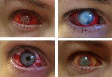 Eye-Trauma-Contact-Lenses  Halloween 2013