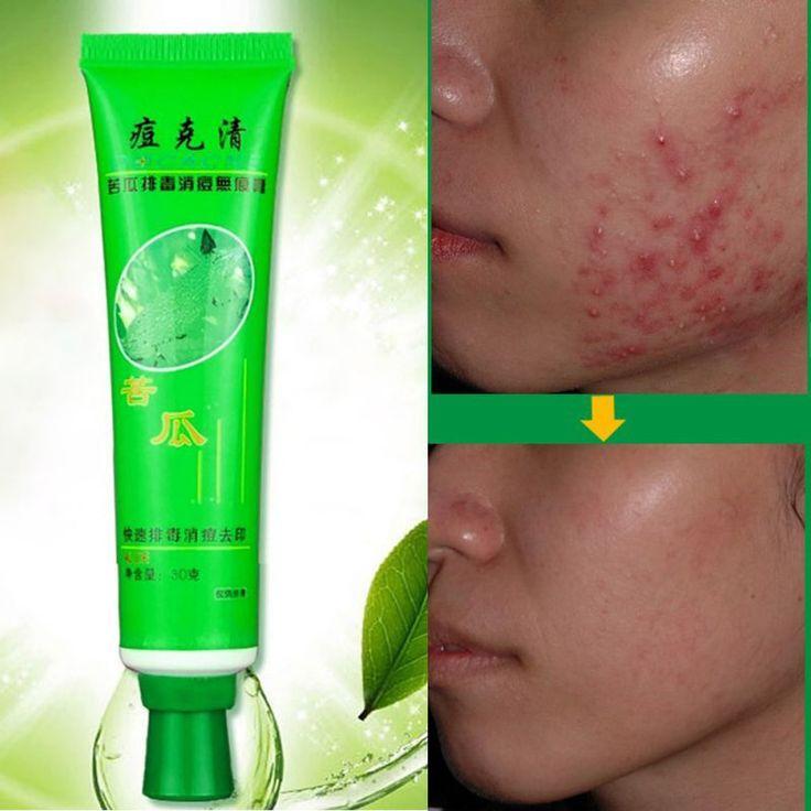 Hot 30g Face Skin Care Acne Cream Blain Desalt Blain Imprint Face Cream New JL46