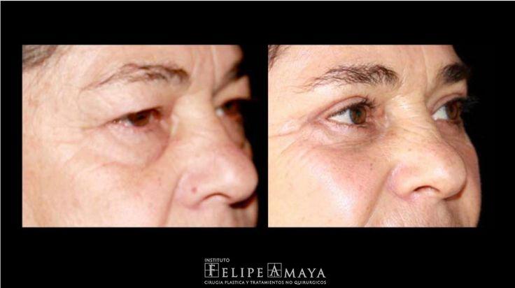 Blefaroplastiaenpárpados superiores e inferiores con resultado natural sin cambiar laexpresión de los ojos  www.felipeamaya.com/cirugia-parpados/ #InstitutoFelipeAmaya #ElEnvejecimientoPuedeRevertirse