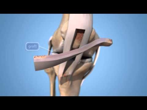 Anterior Cruciate Ligament (ACL) Injuries-OrthoInfo - AAOS