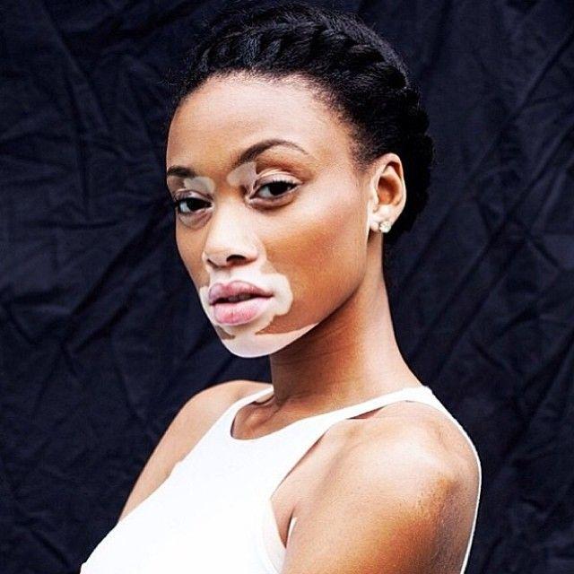 winnie harlow / chantelle winnie / model / natural beauty / vitiligo / strong woman