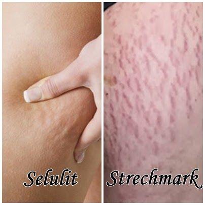 Selulit dan stretch mark merupakan salah satu keluhan yang cukup banyak di alami para wanita dewasa,