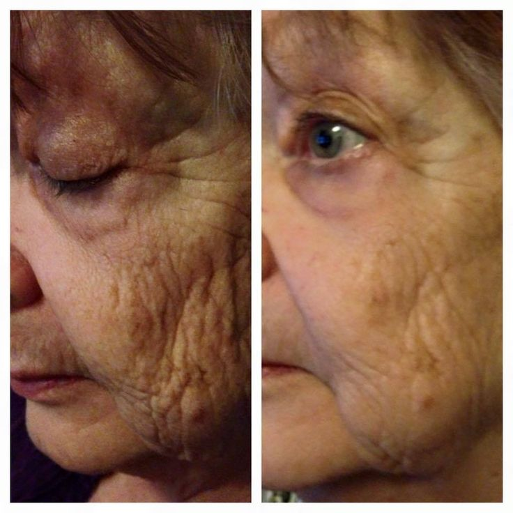 WOW more results in from customers! Just dab, tap, let dry for two minutes and BAM!!! Wrinkles gone! This product line is amazing! And the timing is perfect as we just released it to the United States and canada!!!