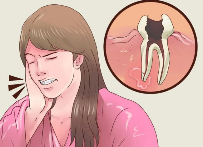 Хотя мы все знаем, что поддержание гигиены в полости рта поможет нам предотвратить проявление многих стоматологических проблем, тем не менее большинство людей существуют проблемы с кариесом и зубной болью. Зубная боль — одна из худших вещей, которые мы испытываем в жизни. Как избавиться от зубной боли К счастью есть одно натуральное средство, которое можно приготовить