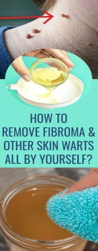 How To Remove Fibromas And Other Skin Warts All By Yourself? – LIFE AT FITJewelry Earrings