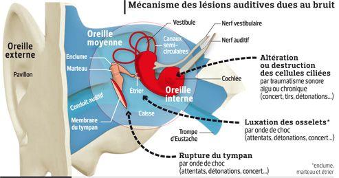 Mécanisme des lésions de l'oreille du au bruit