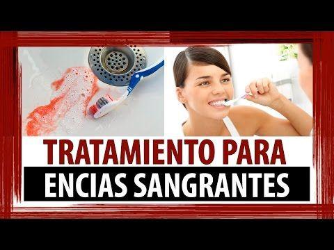SANGRADO DE ENCIAS - TRATAMIENTO PARA ENCIAS SANGRANTES COMO DESINFLAMAR - YouTube