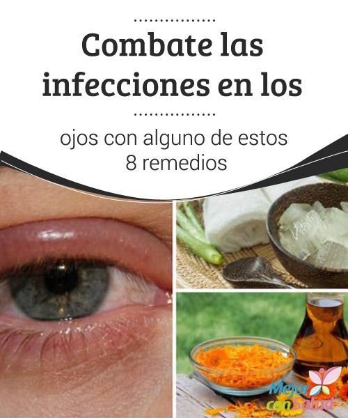 Combate las #Infecciones en los ojos con alguno de estos 8 remedios   Los compuestos antibacterianos y #Antinflamatorios de algunos ingredientes naturales nos ayudan a acelerar la recuperación de las infecciones en los #Ojos. #RemediosNaturales