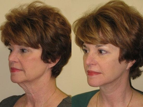 Look Youthful Now With Face Massaging Workouts