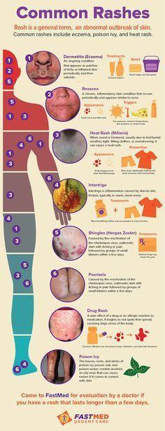 Common Rashes [INFOGRAPHIC] | #skin #itch #rash
