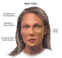 Saturday, 14 January 2012 FACIAL EXERCISES FOR BELL'S PALSY