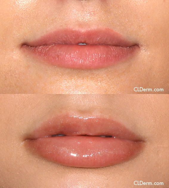 Juvederm is used to plump the the lips for nonsurgical lip ...
