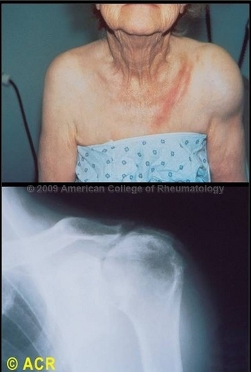 Calcium Hydroxyapatite: Milwaukee Shoulder | Rheumatology ...