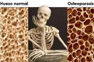 Para tratar la Osteoporosis o para evitar su aparición, alimentos ricos en Calcio es una de las acciones fundamentales.