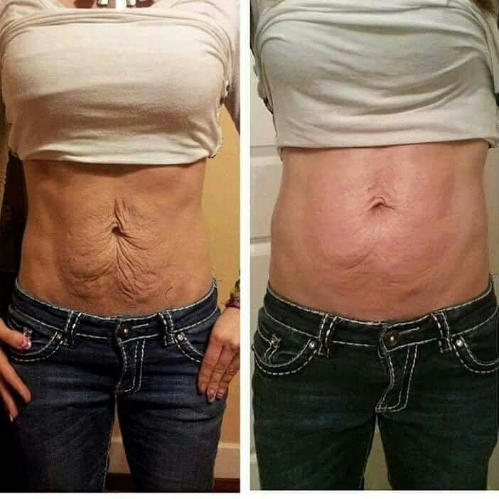 I Get Asked All The Time How To Tighten Loose Skin Here Is How You Have 2 Options Option 1 You Can Spend Tighten Loose Skin Loose Skin Skin Tightening