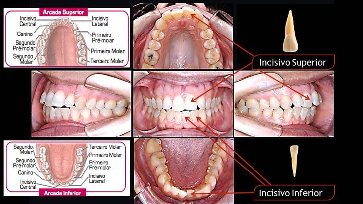 Quais dentes temos Dentes Incisivos