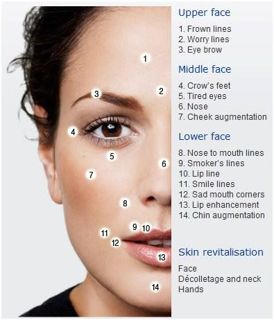 Areas that can be treated by Dermal Filler