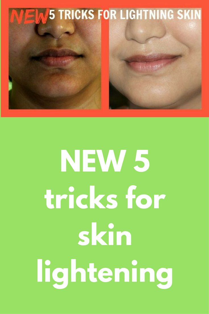 NEW 5 tricks for skin lightening Replace your tired, rough, dull and stressed-out skin with these 5 amazing lightening trick solution. These remedies not only lighten your skin but also bleach your facial hair and boost skin radiance and elasticity of the skin. Using these amazing & easy trick over a period of time results in a naturally lighter skin tone …