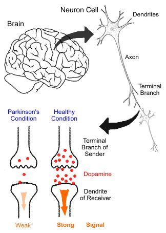 Parkinson's Disease. Pinned by SOS Inc. Resources.  Follow all our boards at http://Pinterest.com/sostherapy for therapy resources.