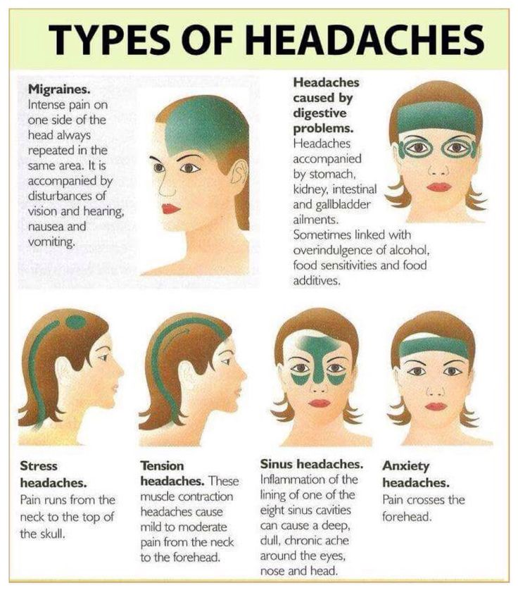 how to stop a migraine coming on
