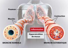 10 remèdes naturels pour soulager l'asthme noté 4.25 - 4 votes L'asthme est une maladie pulmonaire à cause de laquelle une personnes aura du mal à respirer. Une crise survient à cause d'une obstruction qui affecte le flux d'air dans les poumons. Il peut avoir plusieurs causes telles que la pollution, les allergies, une infection...