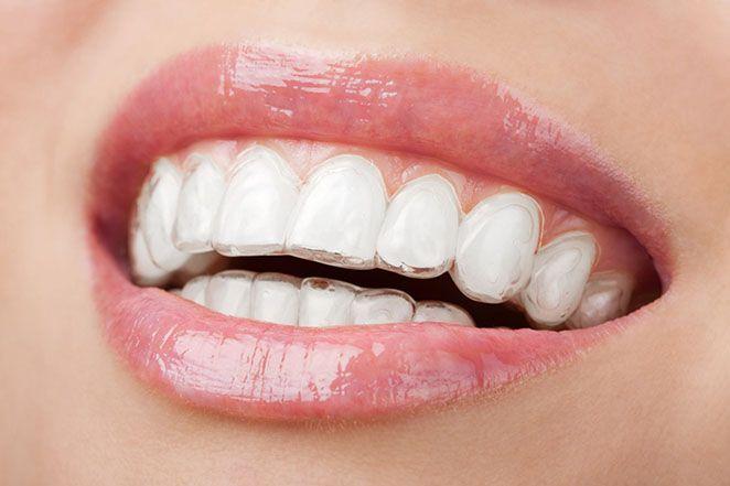Barini Ortodontia - Tipos de aparelhos