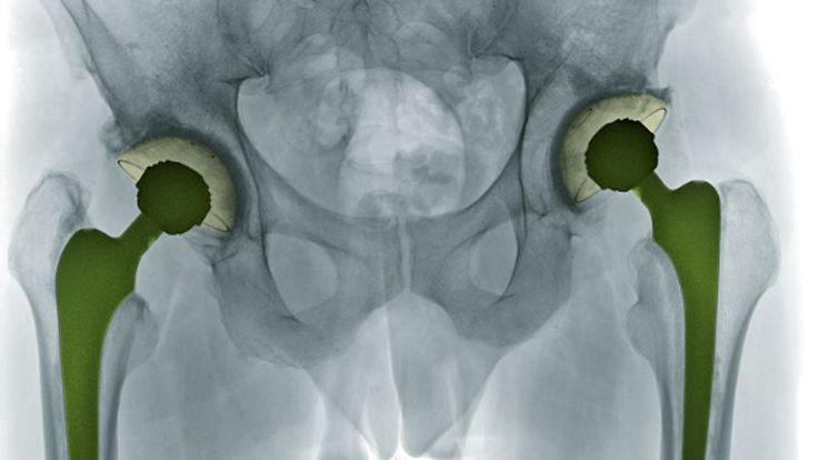 Fracture du col du fémur : opérer le plus vite possible