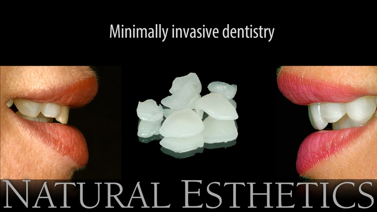 Non invasive composite veneers enhance function and esthetics.