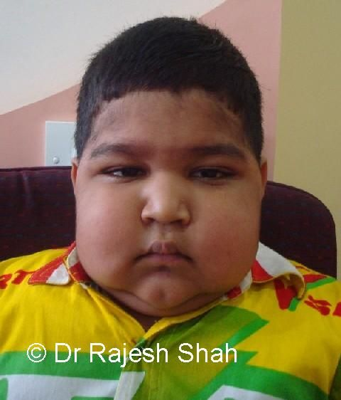 General Clinical Features And Special Types Of Nephrotic Syndrome