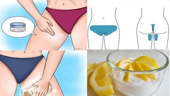 proceso de aclarar la piel de muslos y zona vaginal
