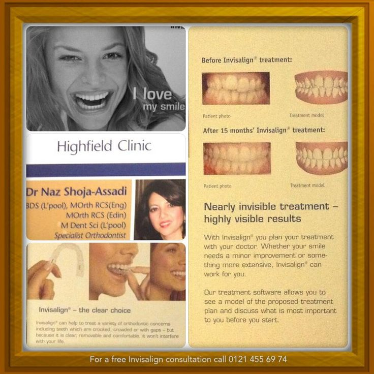 Invisalign (clear) and conventional braces by our Specialist Orthodontist, Dr N Assadi. www.highfielddental.co.uk 0121 4556974 Birmingham